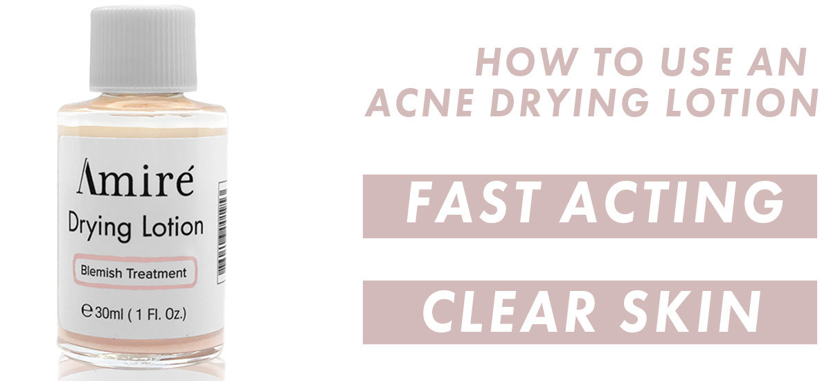 How To Use an Acne Drying Lotion