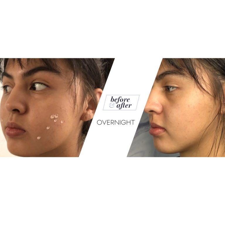 pimples-before-and-after-acne-using-drying-lotion