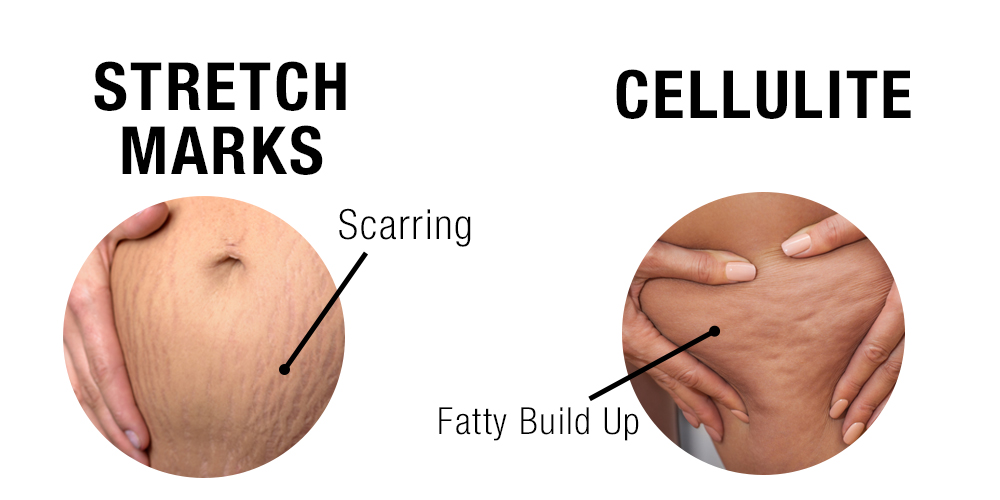 Stretch Marks & Cellulite
