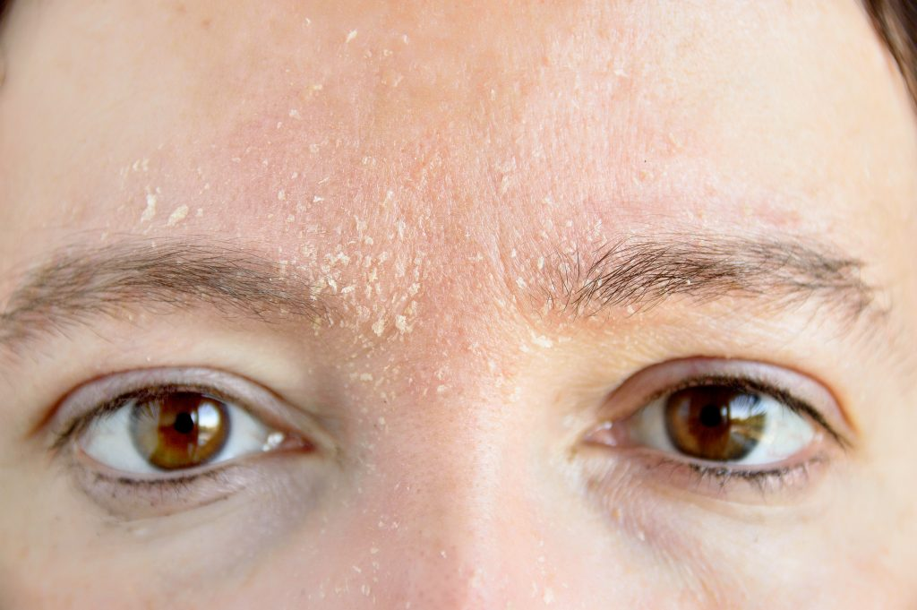 woman's face with dry skin on face around eyebrows